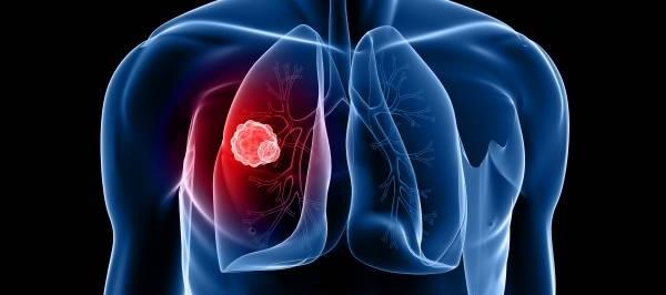 Akciğer Kanseri Nedenleri Ve Tedavisi