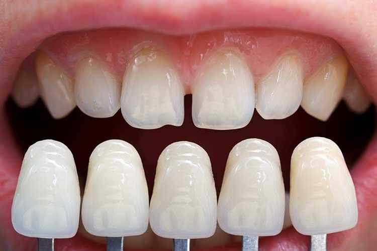 Lamina diş fiyatları neye göre farklılık gösterir?