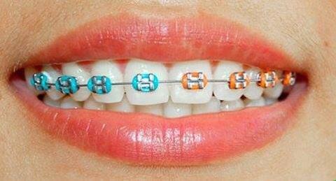Ortodonti Tedavisi Hangi Kusurları Gidermek İçin Kullanılır?