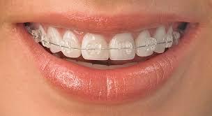 görünmez diş teli bakımı, diş teli bakımı yapma, görünmez diş tellerinde bakım