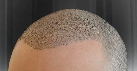 En İyi Saç Ekim Merkezlerinin Tecrübesi