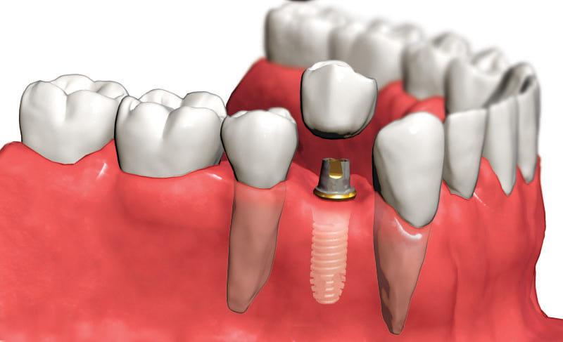 Dişe İmplant Yaptırma