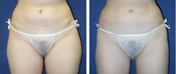 Bakırköy Liposuction Merkezleri Uygulama Fiyatları