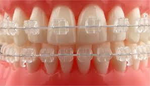 Diş Teli Fiyatları Neye Göre Farklılık Gösterir?