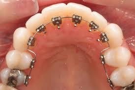 Ortodonti Tedavisinde Diş Hareketleri