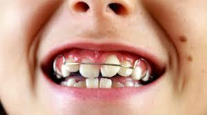Ortodonti Fiyatları Hakkında Bilginiz Var Mı?