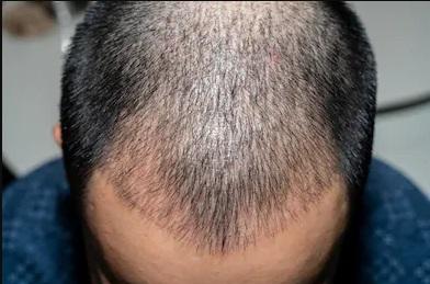 İstanbul saç ekiminin önemi nedir?