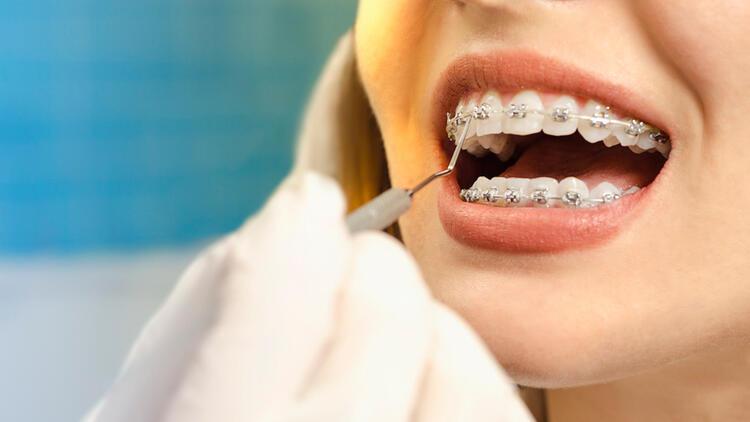 Ortodontist Nedir?