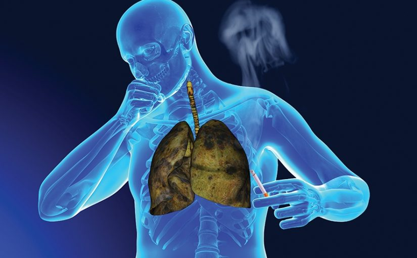 Akciğer Kanseri 4.Evre Belirtileri ve Tedavi