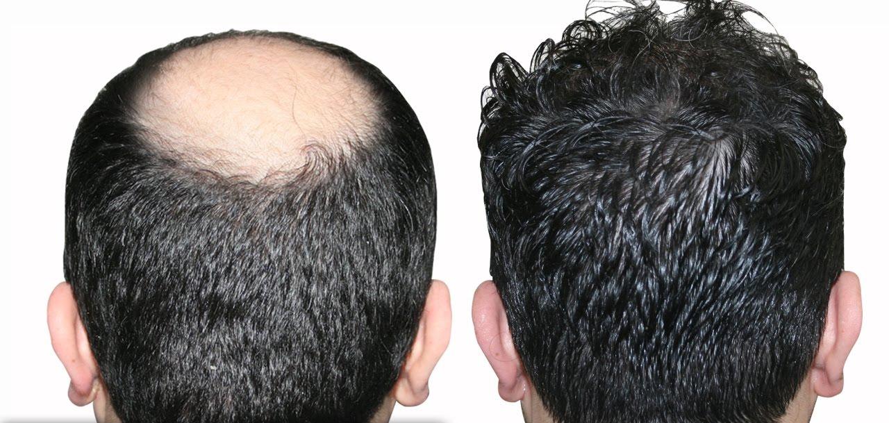 saç ekim merkezi, saç ekimi yapımı, saç ekim merkezi istanbul