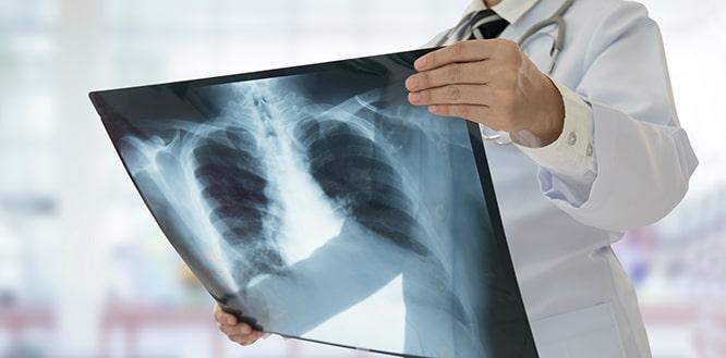 hastalıkları görüntüleme yöntemleri, hastalık görüntüleme yöntemi zararları